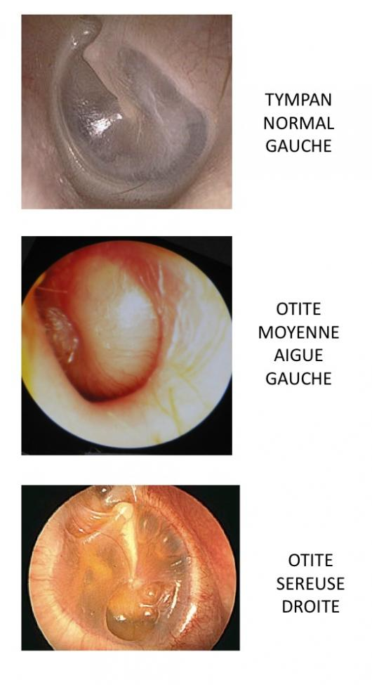 Pathologies De L U0026 39 Oreille